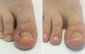 Ingrown Toenail Removal
