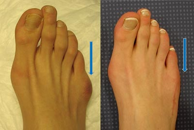 To show correction of little toe joint Tailor's bunion