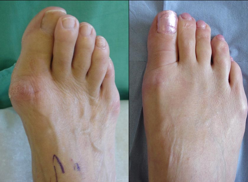 Before and after bunion correction by scarf osteotomy
