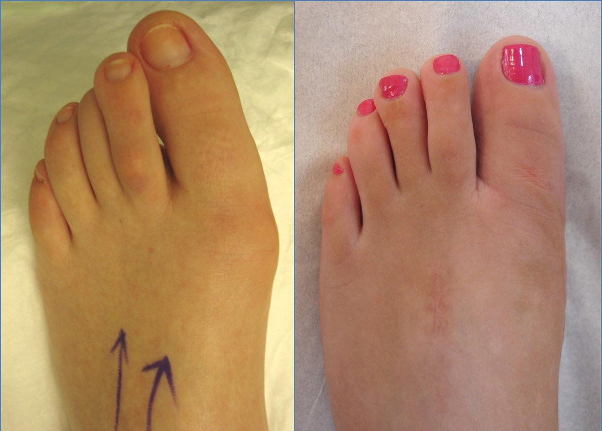 Correction of mild bunion and long hallux