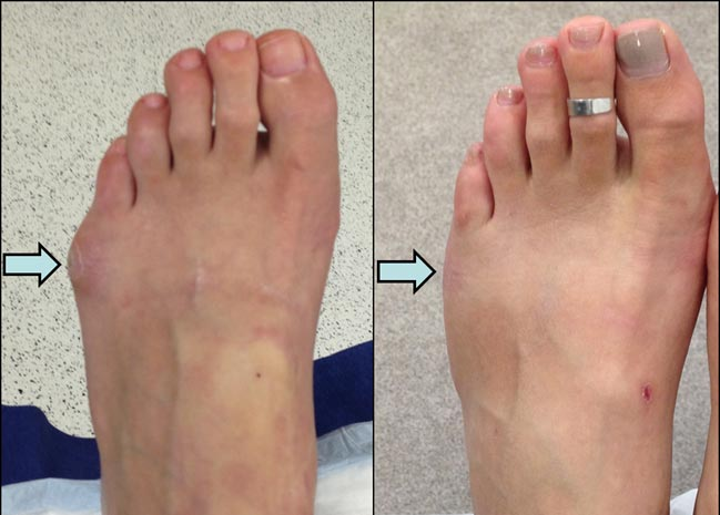 Left foot Tailor's bunion correction 2-months post-surgery