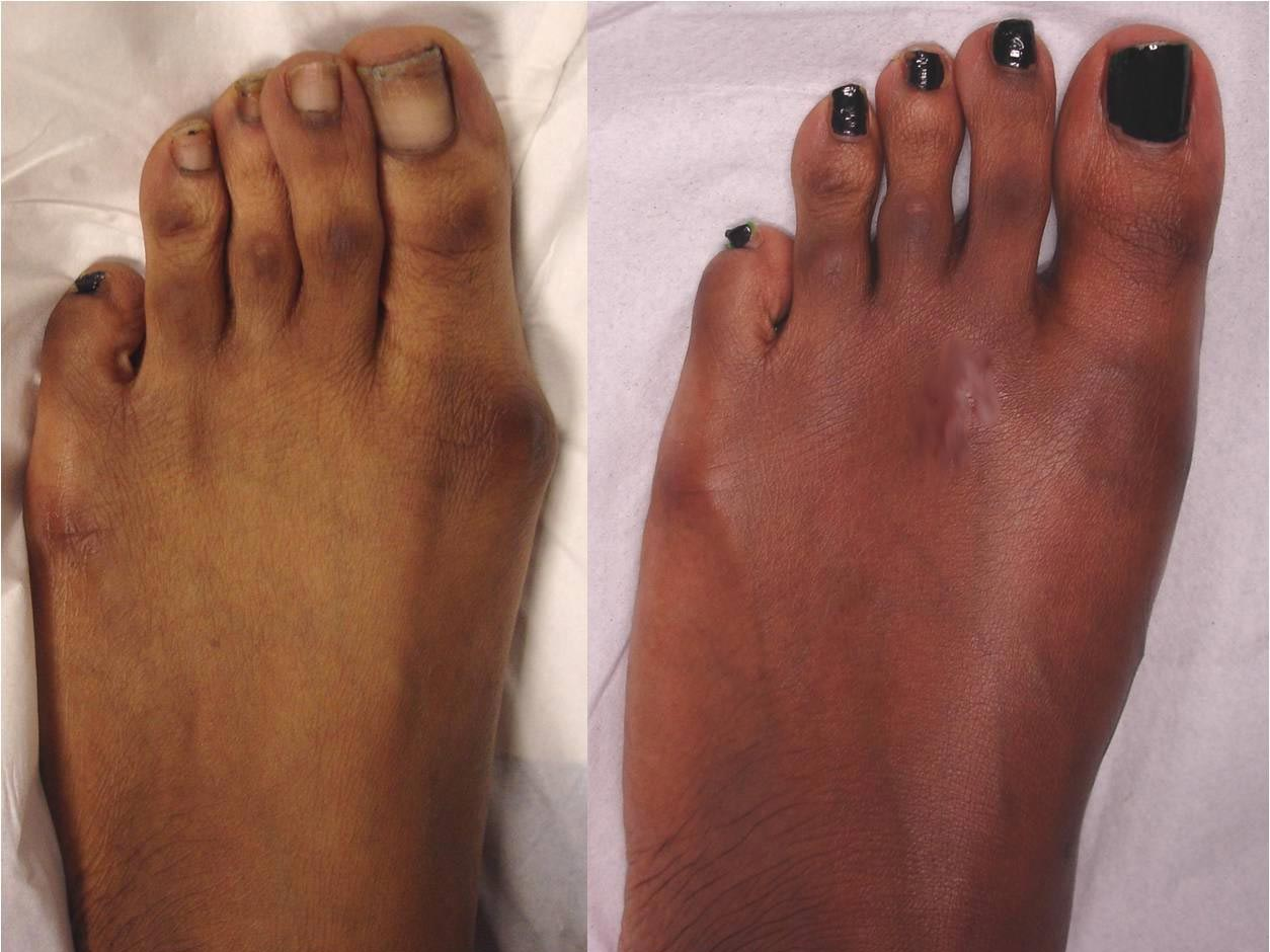 Correction of a moderate bunion deformity on a young Afrocaribbean female patient. This is 2-months after surgery.