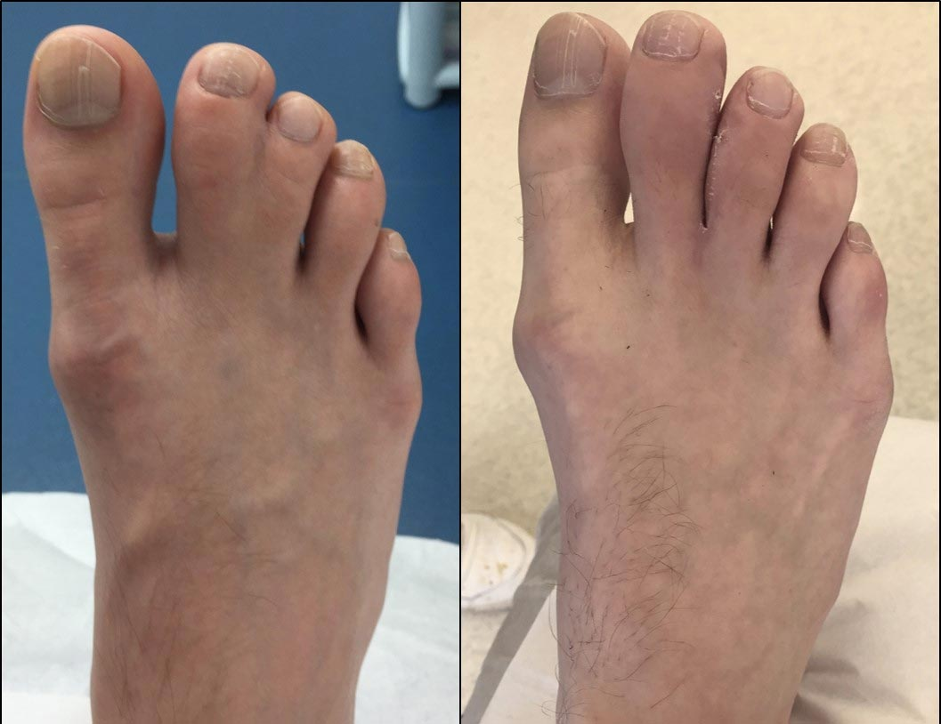 8-weeks after 2nd-3rd toe separation surgery