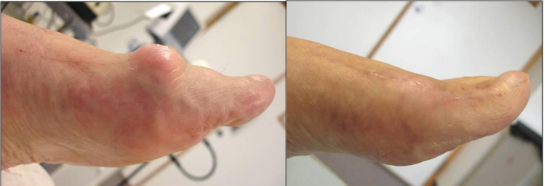To show removal of an unsightly bone bump