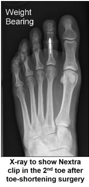 Radiografía NEXTRA-clips