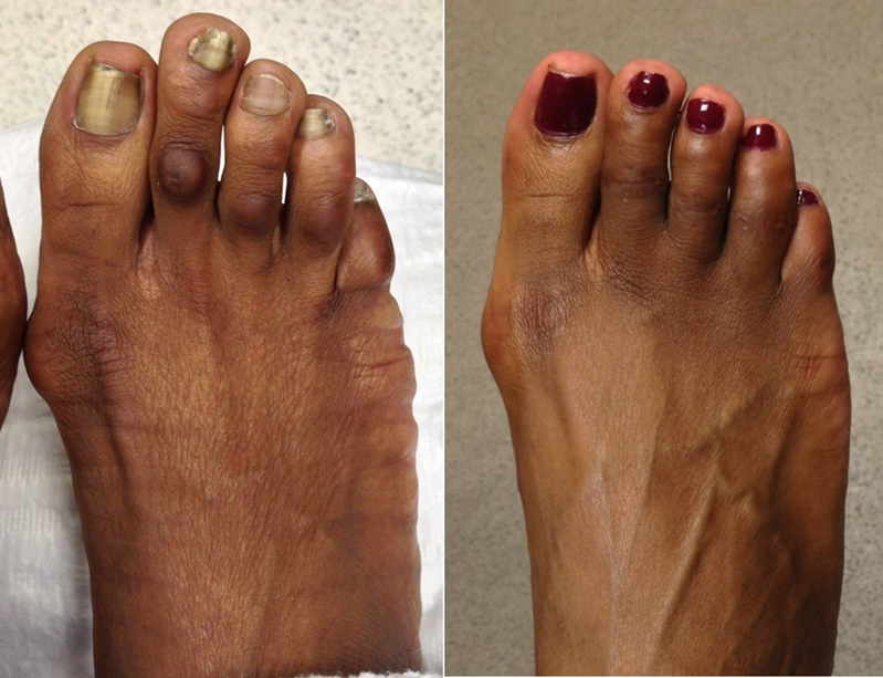 2nd toe shortening and 3rd and 4th toes corn removal.