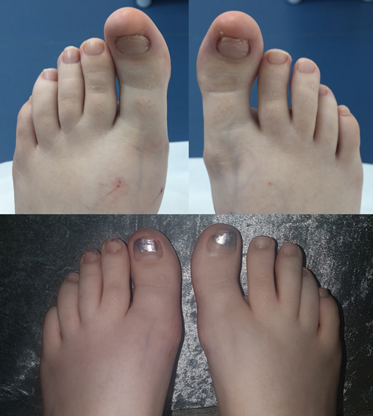 Toe tucks combined with big toe shortening.