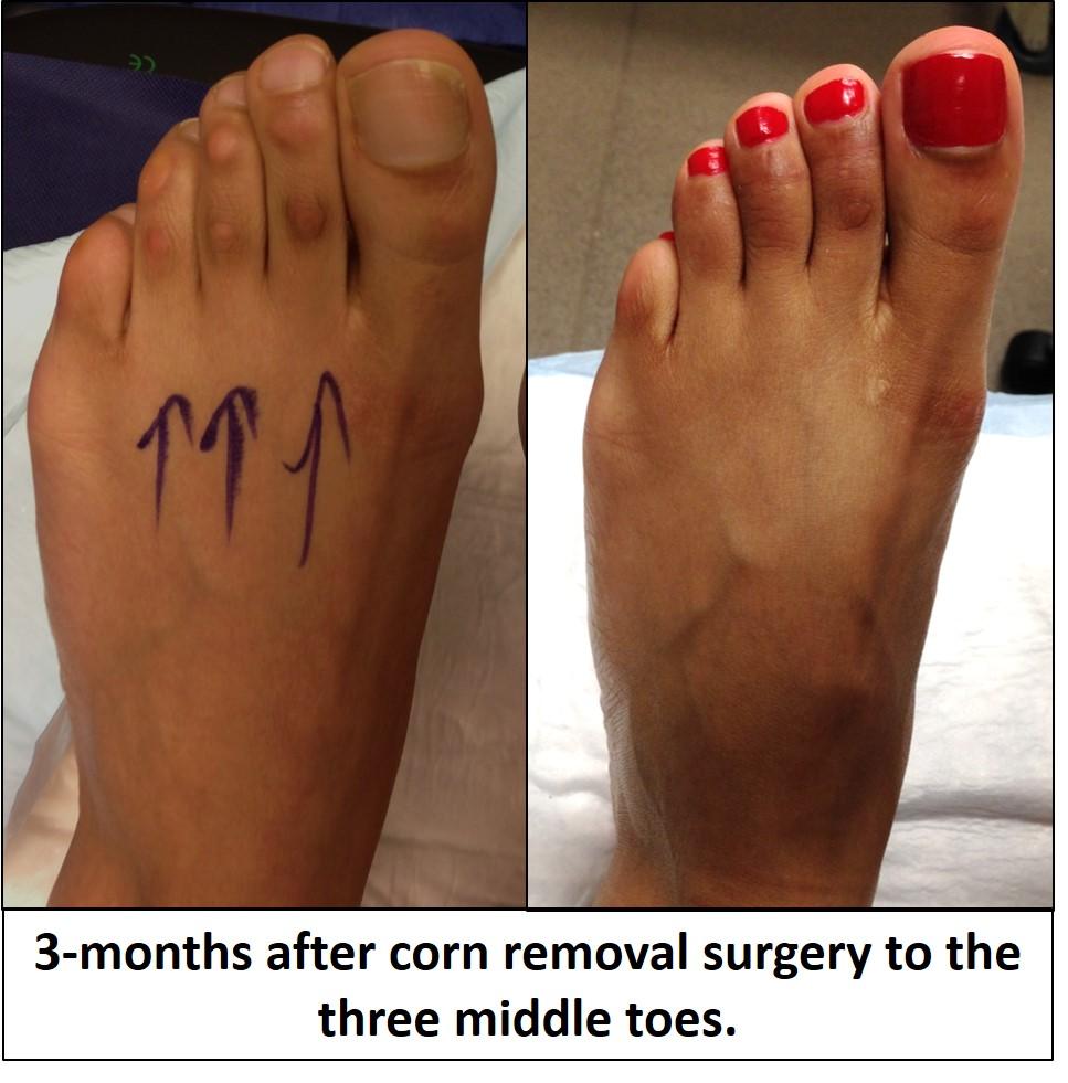 Corn Removal