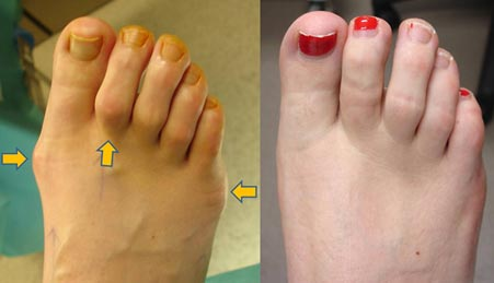 This lady had a big toe bunion and Tailor's bunion correction of the little toe joint. The 2nd hammertoe was also corrected with Smart toe clip. This is 10-months after surgery with no visible scarring.