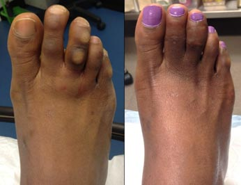 The 2nd and 3rd toes were shortened with Nextra clips. The depigmented corn lesions were also removed permanently.