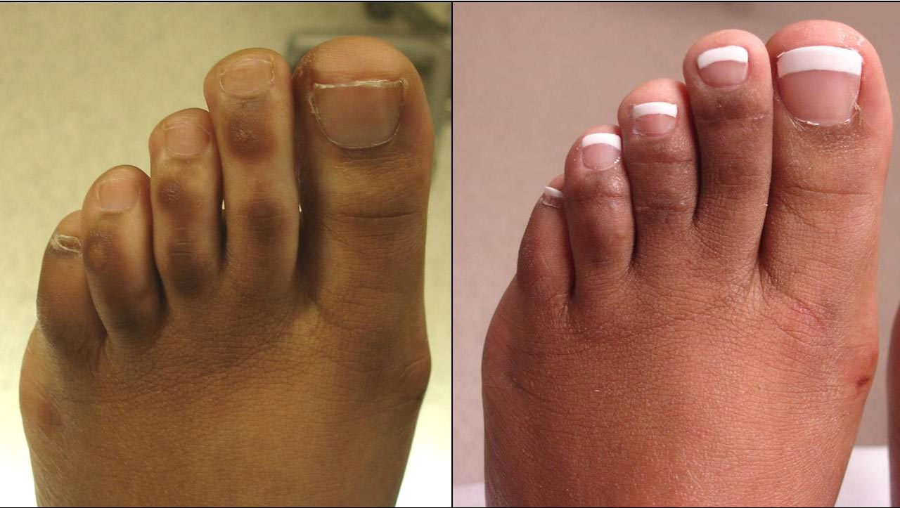 Multiple pigmented lesions were removed from the middle 3 toes and the toes were also slightly shortened. The patient is very pleased at 3-months after surgery and is aware that her mild scarring will continue to improve over a long period of time.
