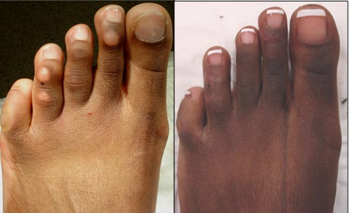 2nd and 4th toe skin plasty procedures for unsightly (depigmented) corn lesions