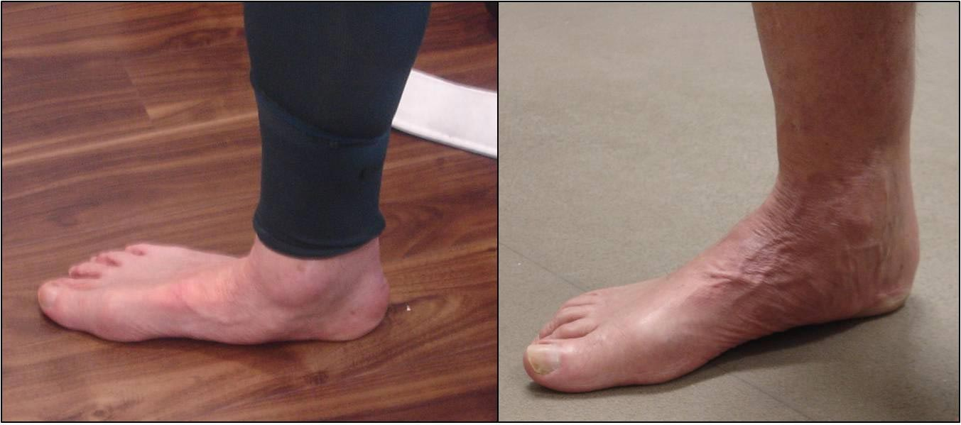To show repair of collapsed flatfoot before surgery (left picture) and 7-months after surgery (right picture)