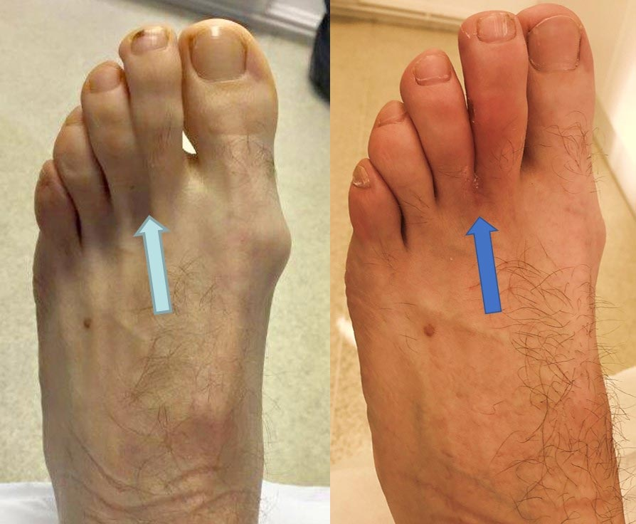 8-weeks after 2nd-3rd toe separation