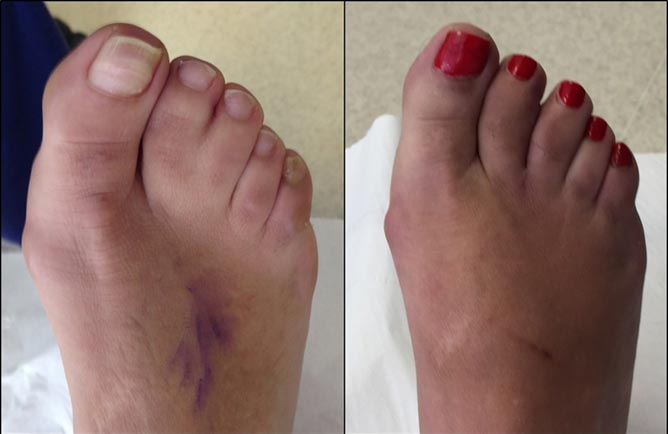 3-months after toe separation surgery for joined toes (aka: syndactyly)