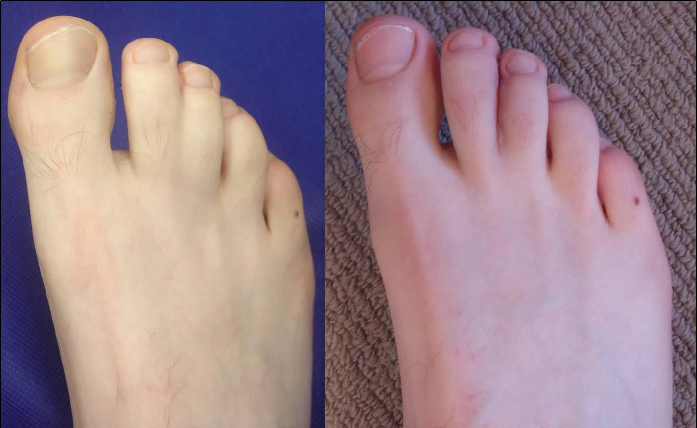 Right foot six-months after de-syndactly procedure to separate the 2nd and 3rd toes
