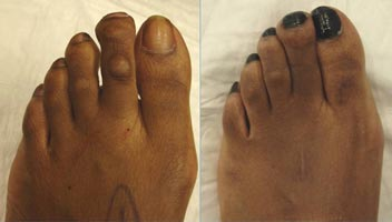 Before and after shortening of a long 2nd toe with corn removal