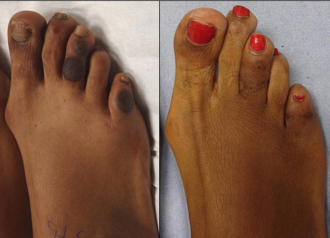 A combination of skin and bone surgery techniques were used to eliminate this patient's unsightly pigmented 3rd and 5th toe lesions. This is 2-months following the surgery.