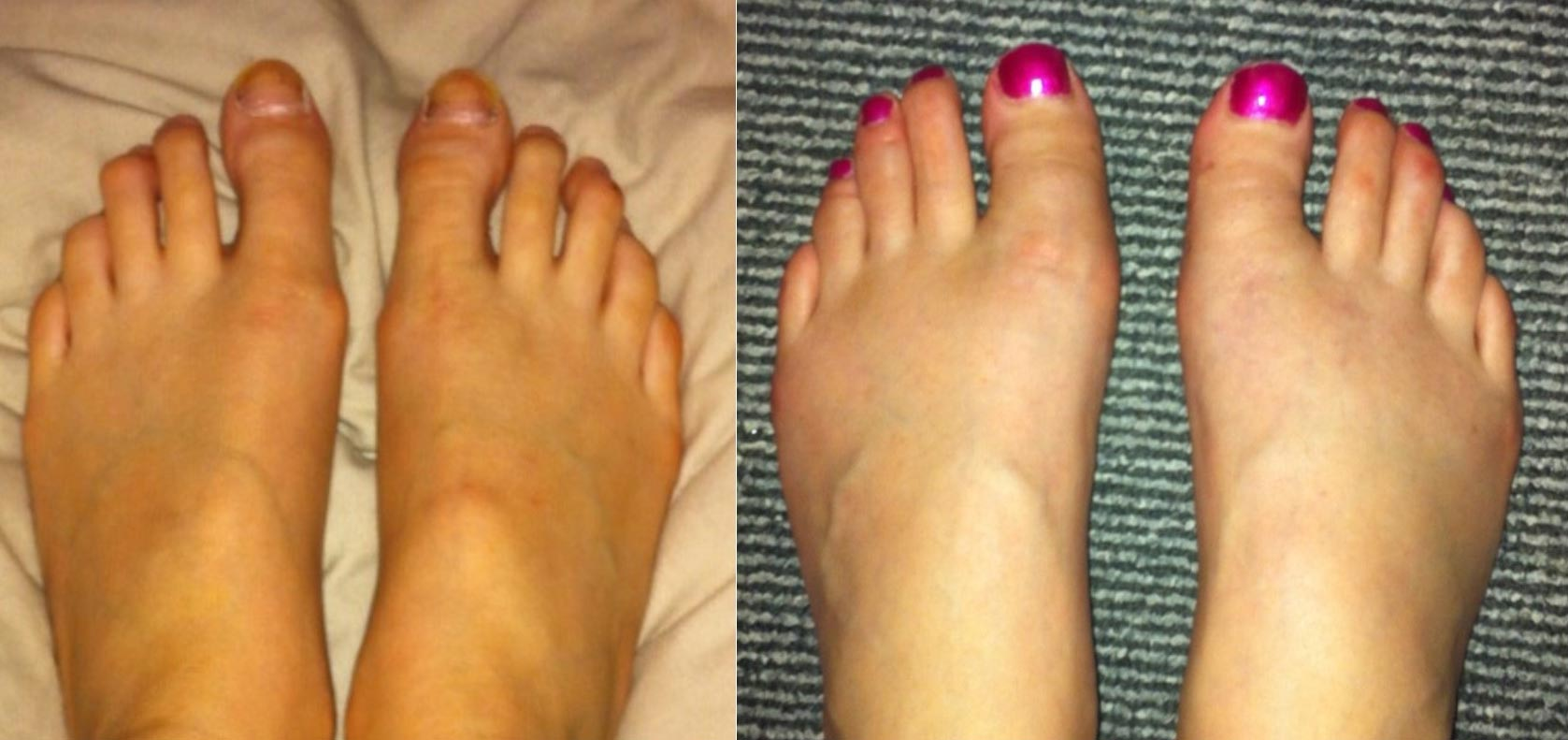 "To show 3-months after big-toe shortening surgery. The left 3rd and 4th - ""mallet toe"" - deformities were also corrected."