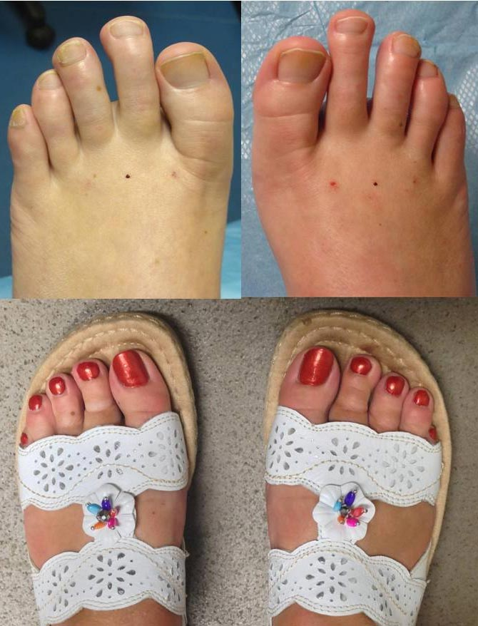 """I can't thank Mr Hargrave enough for the transformation he has done to my toes. I have just returned from a holiday abroad and it's the first time I have been able to wear pretty open toe sansals and not be embarrassed by my feet. It has made me so happy and I am so glad I went ahead after many years of hiding my feet."""