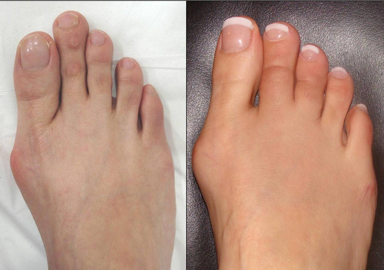 Patient 3-month after shortening of 2nd and 3rd toes, some swelling is still present and will resolve over the next 3-months.