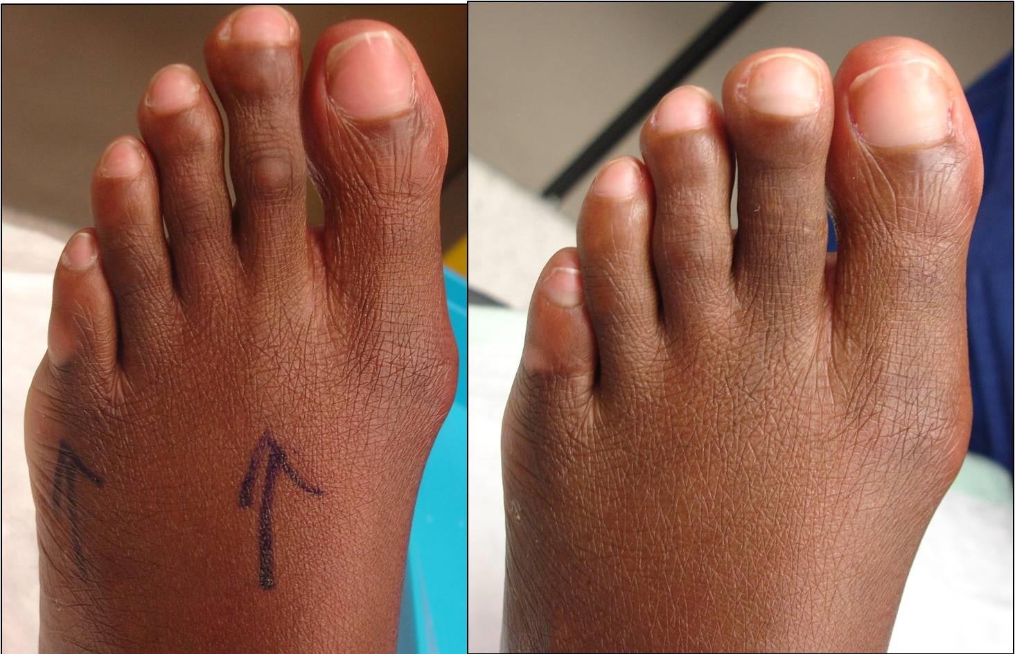 5-months after the left 2nd toe was shortened with the Smart toe clip, this patient returned for her right 2nd toe procedure.
