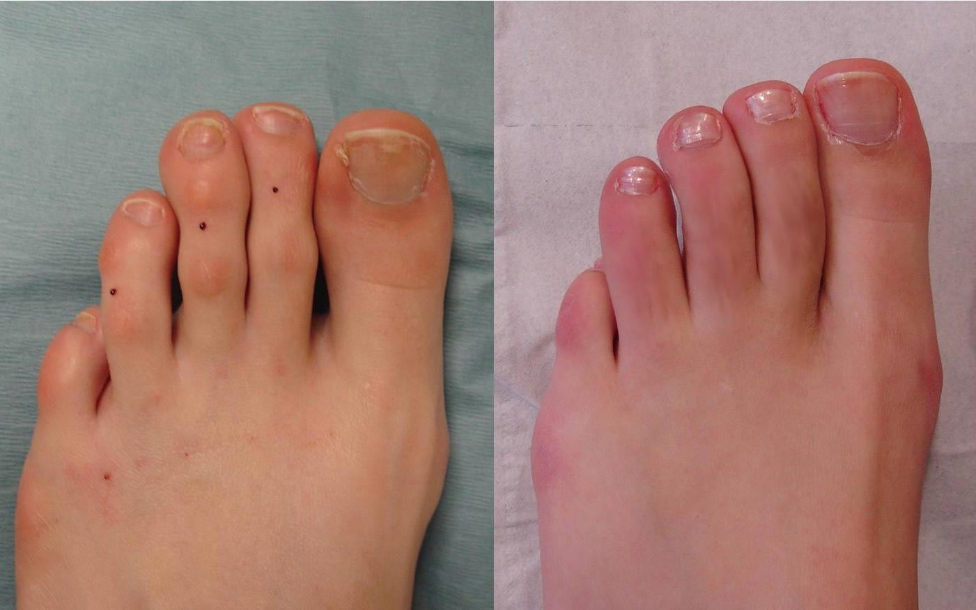 Before and after of toe shortening surgery to the 2nd, 3rd and 4th toes (5-months post-surgery)