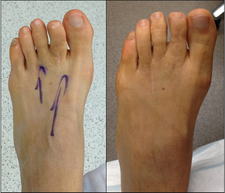 2-months after revision of short toe following two failed hammertoe correction surgeries (brachydactyly)